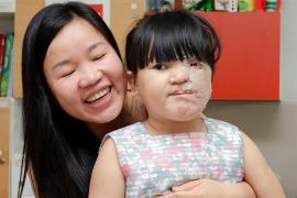 Un nuevo rostro para Nguyet, la niña vietnamita a la que nadie quería mirar