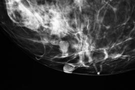 La inmunoterapia combate el cáncer de una paciente con metástasis
