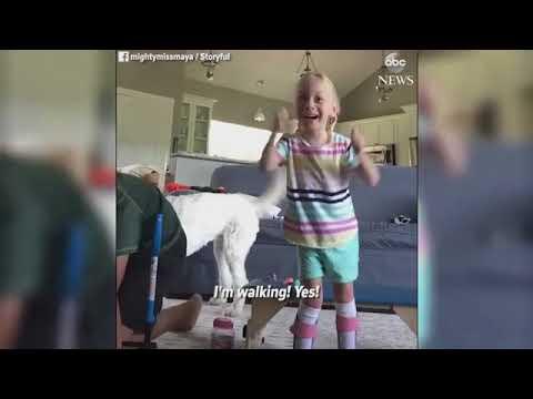Los primeros pasos de una niña con parálisis cerebral tras dos meses de la operación