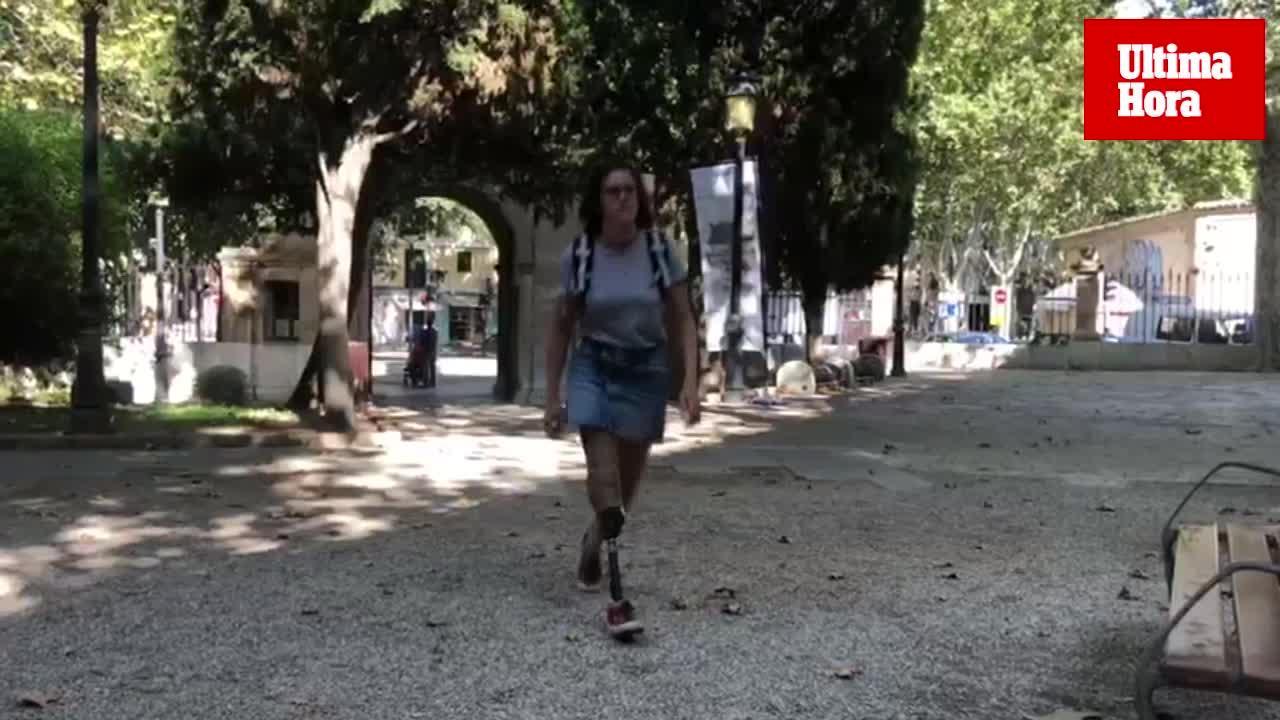 Alba Pizá, con una pierna amputada: «Oye, que no pasa nada, que yo soy muy feliz así»