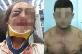 Detenido un hombre en Manacor por agredir brutalmente a su pareja