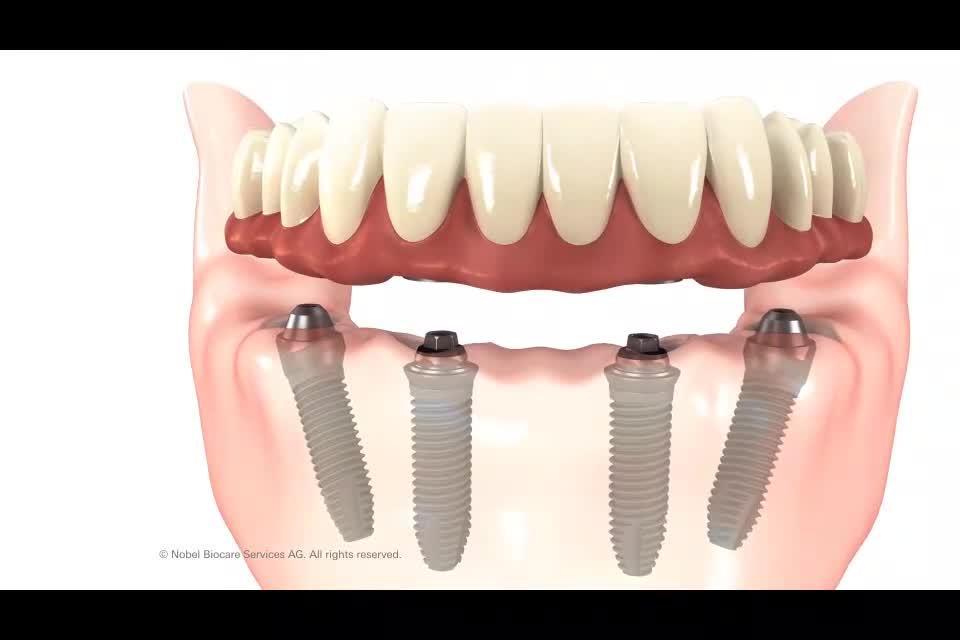 Tratamiento 'All-on-4', una prótesis completa y fija desde el primer día