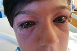 Un nuevo reto viral deja a un niño con graves lesiones cerebrales