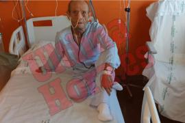 Hospitalizado un hombre de 81 años tras un brutal atraco en una calle de Magaluf