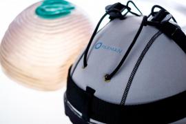 Un sistema pionero, disponible en Palma, previene la caída del cabello durante la quimioterapia