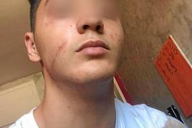 El hermano de Malén Ortiz muestra las secuelas de la supuesta agresión policial