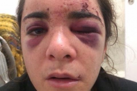 La joven violada en Madrid lanza una campaña en favor de otras víctimas de agresión sexual