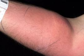 Hospitalizado tras inyectarse su propio semen en el brazo