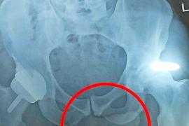 La radiografía de Andy Murray en la que se le ve el pene