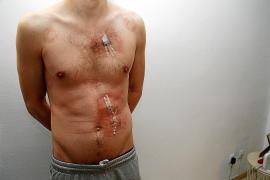 El enfermero acuchillado: «Me gritaron que les diera el dinero y luego me asestaron tres puñaladas»