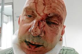 Tres ladrones propinan una brutal paliza a un residente inglés en Calvià