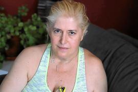 Dos mujeres padecen gangrena tras una cirugía plástica en Son Llàtzer