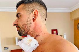 Joven agredido en Palma: «El chico tenía una copa de balón en la mano y me la reventó en el cuello»
