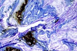 Una nueva esperanza contra el cáncer de páncreas